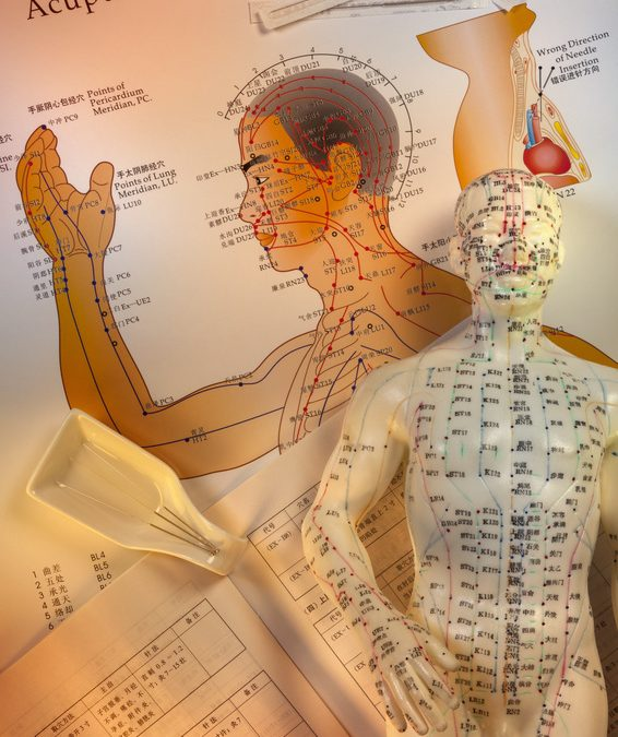 The Advantages of Acupuncture for Pain Relief