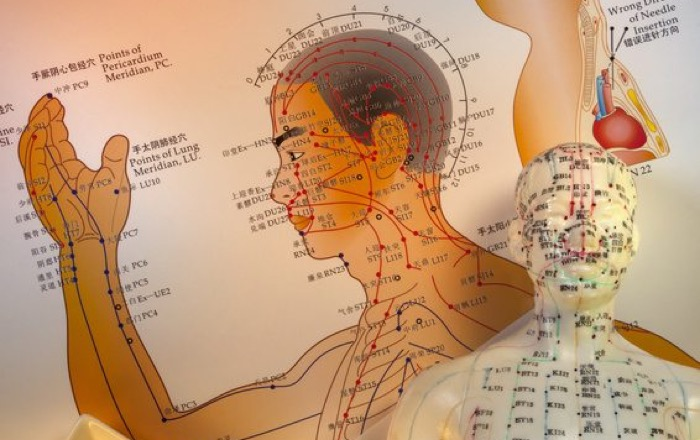 acupuncture body map for pain relief