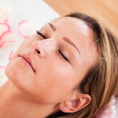 Acupuncture Can Help with 4 Common Medical Issues