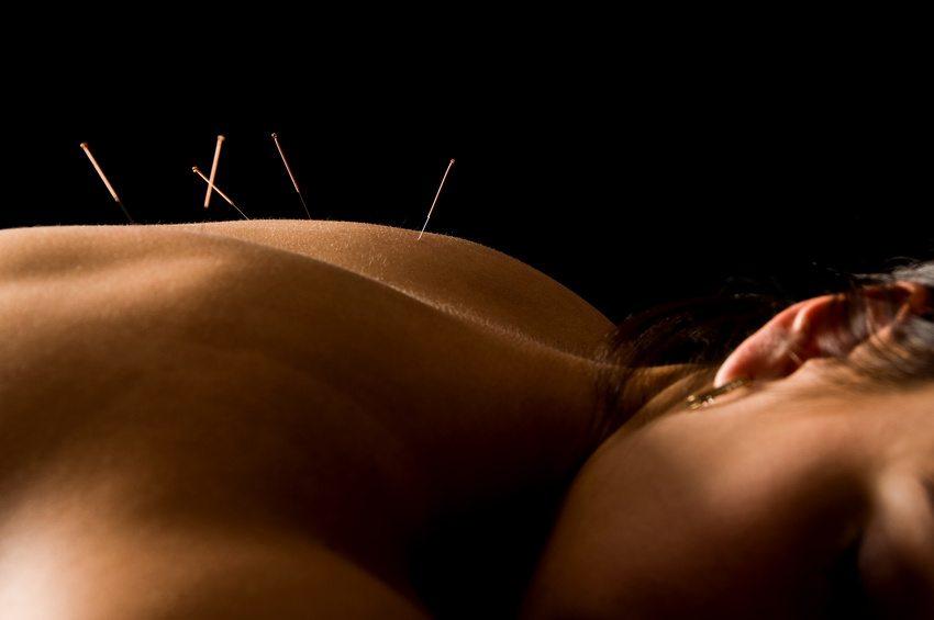 woman pregnancy through acupuncture